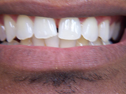 ClearCorrect Before