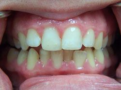 Single Tooth Bleaching and Bonding After